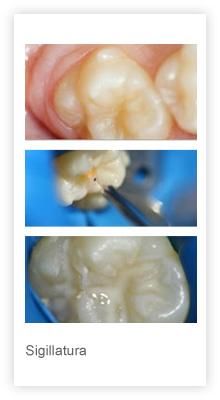 sigillatura molari