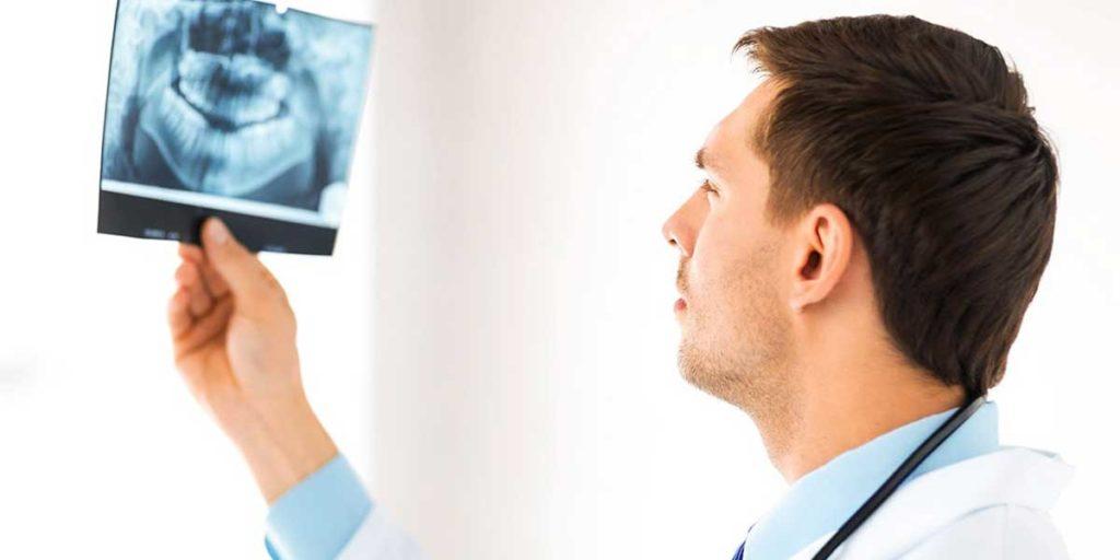 dentista con radiografia implantologia